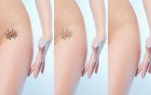 Como Tirar Um Tatuagem e Quanto Custa Remover a Tatoo?