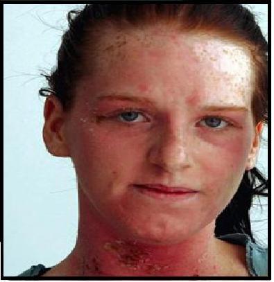 Alergia De Tinta Capilar
