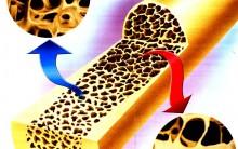 Prevenção E Tratamento Da Osteoporose