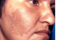 Melasma- Manchas do Rosto