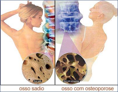Osteoporose o Que é- Causas