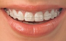 Cuidados Com Seu Aparelho Dental