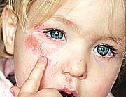 Celulite Infecciosa- Sintomas