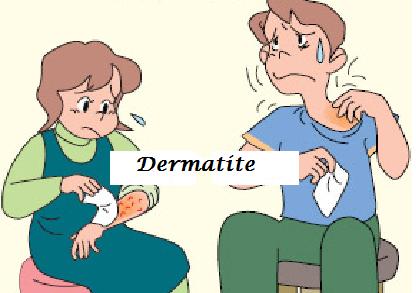 Dermatite De Contato – O Que É E Tratamento