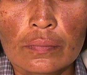 Manchas Na Pele Como E Onde Fazer O Tratamento