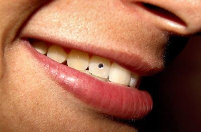 Moda De Piercing No Dente