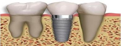 Implantes Dentários – Informações