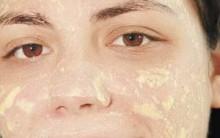 Máscara Caseira Contra Acne