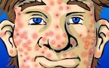 Acne Pode Causar Infecções E Câncer