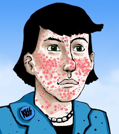 Anti Acne – Dicas
