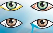Conjuntivite – Sintomas
