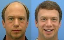 Implante Capilar – Como é Feito o Procedimento