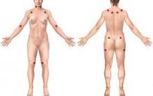 Fibromialgia – O Que É