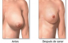 Mamoplastia – O Que é