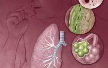 Pneumonia – Causas e Sintomas