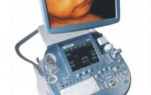 Ultrassonografia em 3d/4d – Como Funciona,Preço,como Fazer Exame