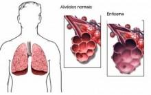 Bronquite Crônica – O que é, Tratamento
