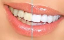 Clareamento Dental a Laser – Preço, Cuidados, Vantagens