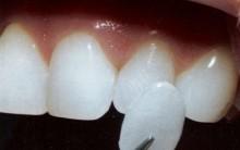 Novas Lentes de Contato Para os Dentes – Como Funciona, Onde Comprar, Vantagens