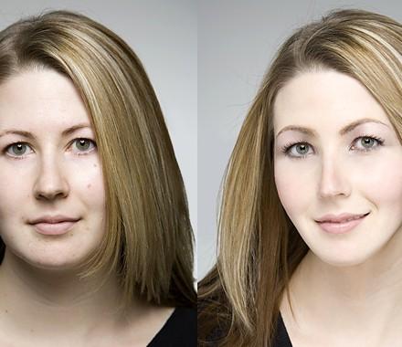 Ulthera Novo Tratamento em Benefício da Beleza