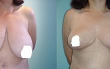 Mamoplastia Redutora – Para Que Serve, Fotos Antes e Depois,Vídeos, Qual o Preço