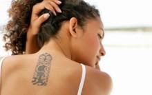 Métodos Para Remoção de Tatuagem – Como Remover e Preços