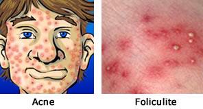 Foliculite – O Que é, Quais São as Causas, Seus Sintomas e Qual o Tratamento