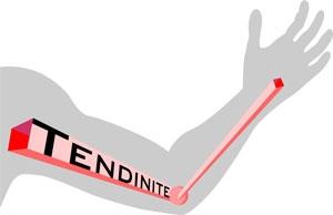 Tendinite – O Que é Quais os Sintomas, Qual Tipo de Tratamento, Vídeos