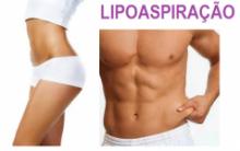 Lipoaspiração Feita a Laser – Como Fazer, Qual o Preço, Benefícios, Fotos Antes e Depois
