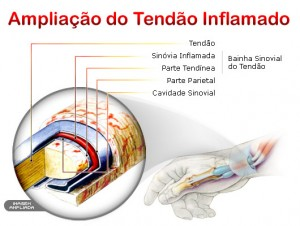 tratamento-tendinite-no-ombro