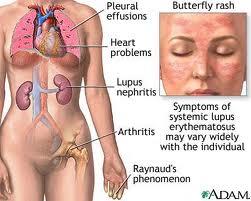 Choque Anafilático –  O que é, Quais os Sintomas e Tratamento