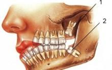 Quando Remover o Dente do Siso – Informações