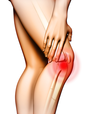 Osteoporose – O que é, Causas, Tratamento