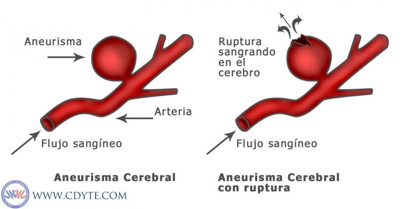 Aneurisma-Cerebral_b