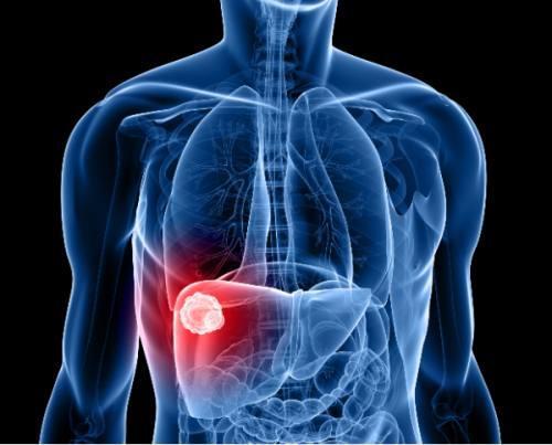 Hepatite – O que é, Sintomas, Tratamento, Vídeo