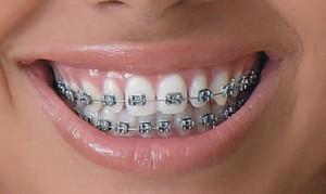 Ortodontia – Como é o Tratamento (1)