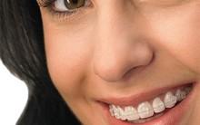 Ortodontia – Como é o Tratamento