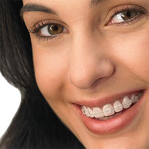 Ortodontia – Como é o Tratamento (3)