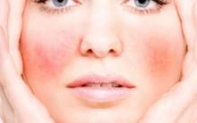 Cuidados Com a Pele Sensível – Você Tem Pele Sensível, O Que Evitar