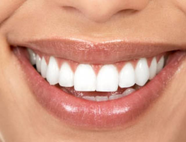 Alimentos Que Escurecem os Dentes – Quais São Esses Alimentos