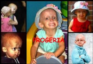 progeria montagem