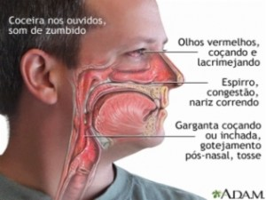 Rinite_Alegica_Tratamento