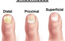 Doença das Unhas Onicomicose – Diagnóstico, Tratamento