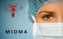 Mioma Uterino – Quais os Sintomas e Seus Tratamentos