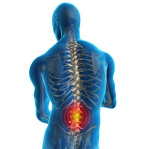 Como-Prevenir-Dores-na-Coluna-–-Lordose-e-Artrose