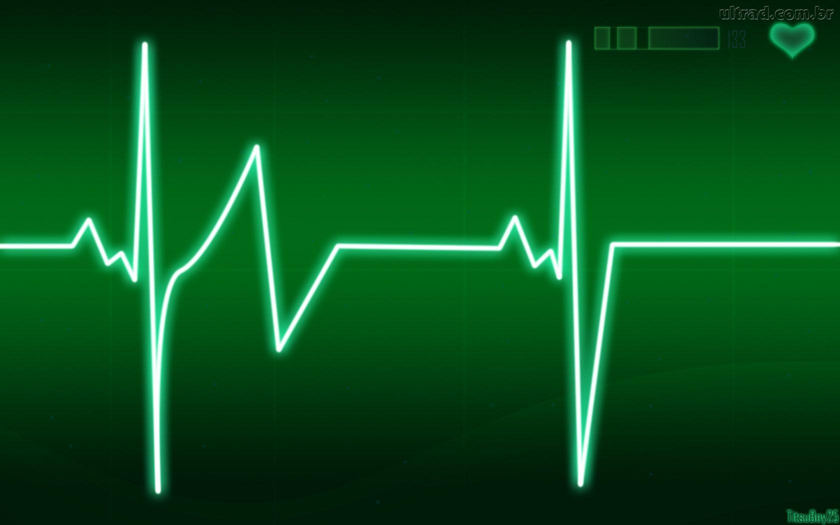 Arritmia Cardíaca – Sintomas, Causas e Tratamento
