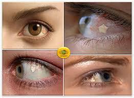 Implante de Jóia nos Olhos