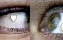 Implante de Jóia nos Olhos Nova Tendência – Quais os Riscos