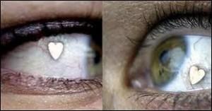 implante-olhos
