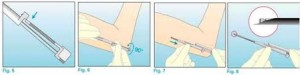 aplicacao-Implante Hormonal em Mulheres